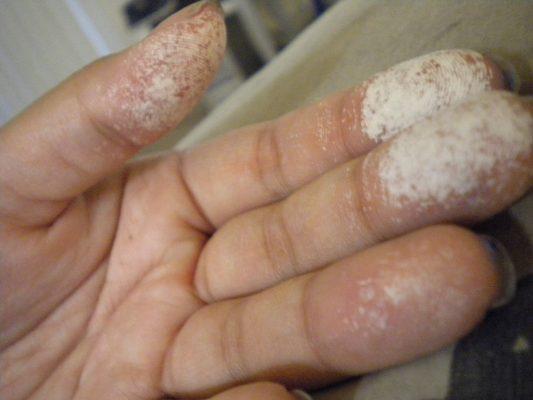 mani bruciate dall'acqua ossigenata